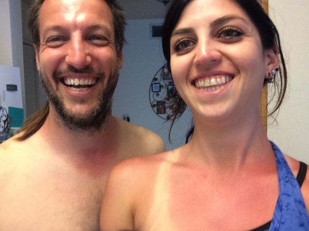 His and Hers Sunburns